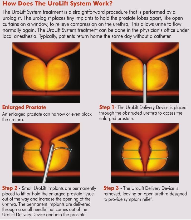 prostate turp surgery forum Prostatitis és öröklés